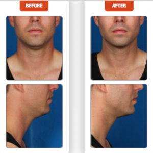 Terese Taylor M.D. - Cape Coral and Fort Myers Doctor - Kybella Before and After
