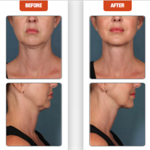 Terese Taylor M.D. - Cape Coral and Fort Lauderdale Doctor - Kybella Before and After