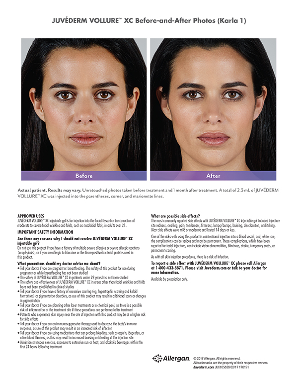 Terese Taylor M.D. - Cape Coral and Fort Myers Doctor - Juvederm Vollure Before and After