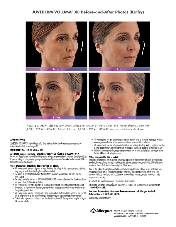 Terese Taylor M.D. - Cape Coral and Fort Lauderdale Doctor - Juvederm Voluma Before and After