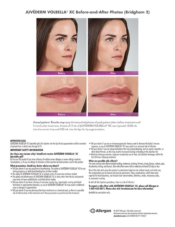 Terese Taylor M.D. - Cape Coral and Fort Lauderdale Doctor - Juvederm Volbella Before and After