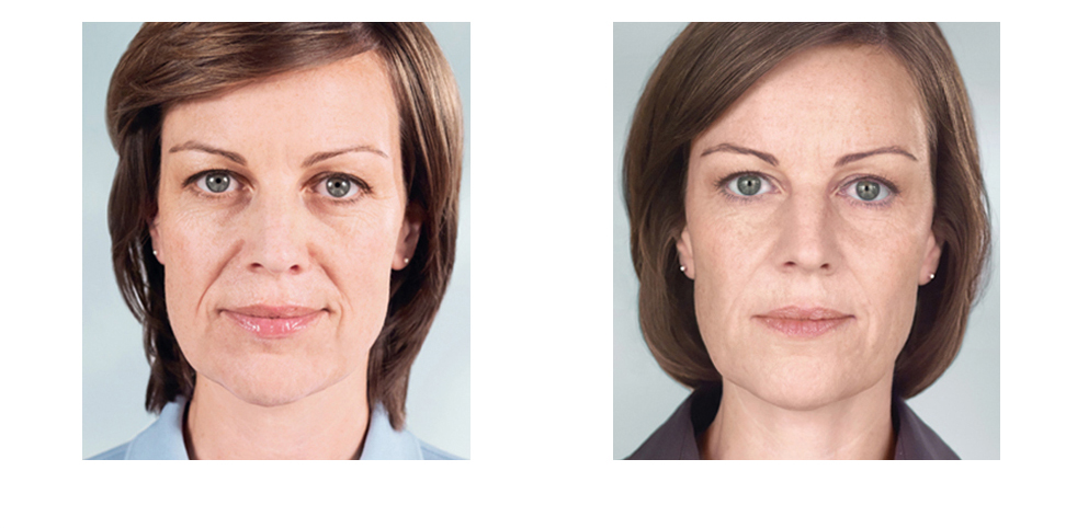 Terese Taylor M.D. - Cape Coral and Fort Myers Doctor - Sculptra Before and After