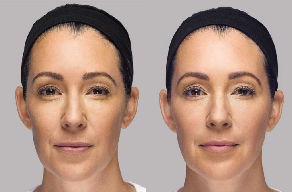 Dr. Terese Taylor M.D. - Cape Coral and Fort Lauderdale Doctor - Restylane Lyft - Before and After
