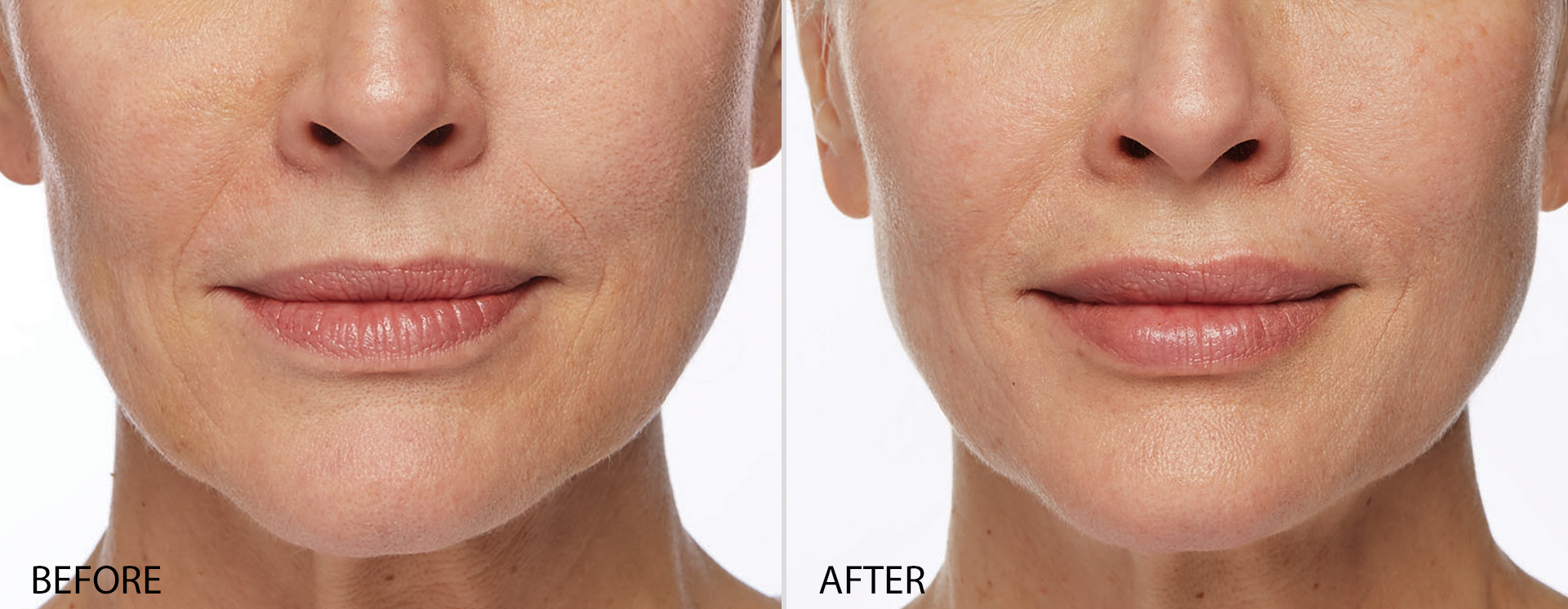 Dr. Terese Taylor M.D. - Cape Coral and Fort Lauderdale Doctor - Restylane Silk - Before and After