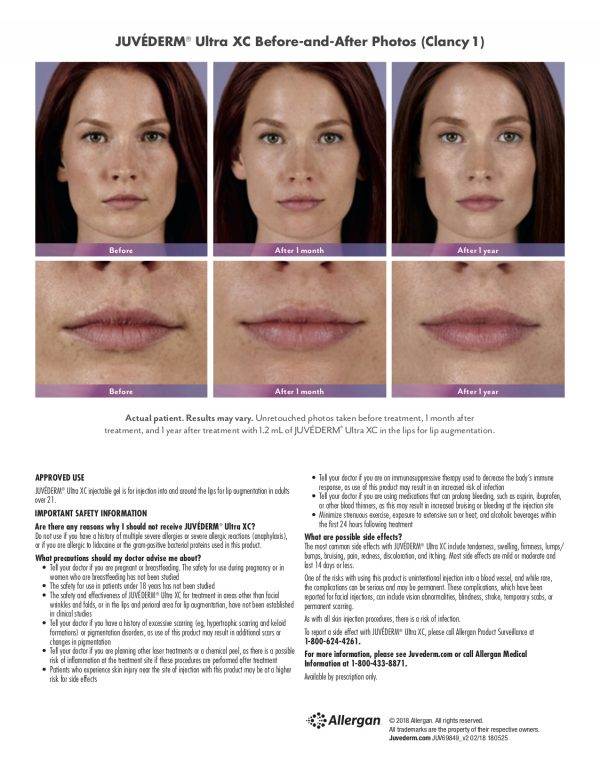 Terese Taylor M.D. - Cape Coral and Fort Lauderdale Doctor - Juvederm Ultra XC - Before & After