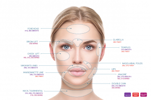 Terese Taylor M.D. - Cape Coral and Fort Myers Doctor - NovaThreads Face Chart