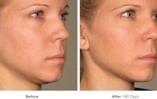 Dr. Terese Taylor M.D. - Cape Coral and Pompano Beach Doctor - Ultherapy Before and After