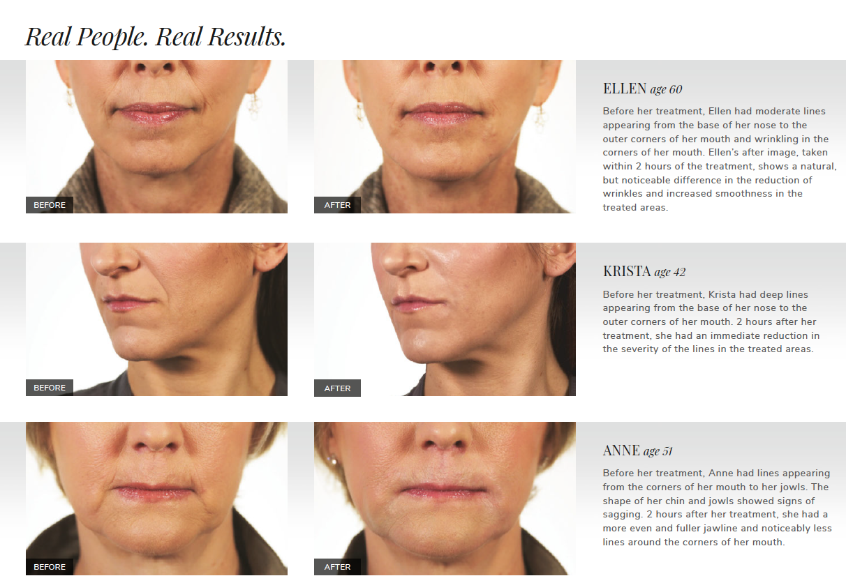 Dr. Terese Taylor M.D. - Cape Coral and Fort Lauderdale Doctor - Revanesse Versa Before and After