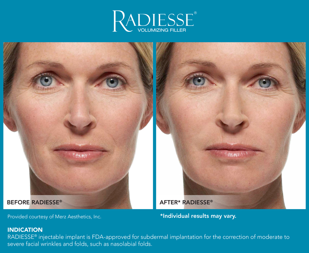 Dr. Terese Taylor M.D. - Cape Coral and Pompano Beach Doctor - Radiesse Before and After