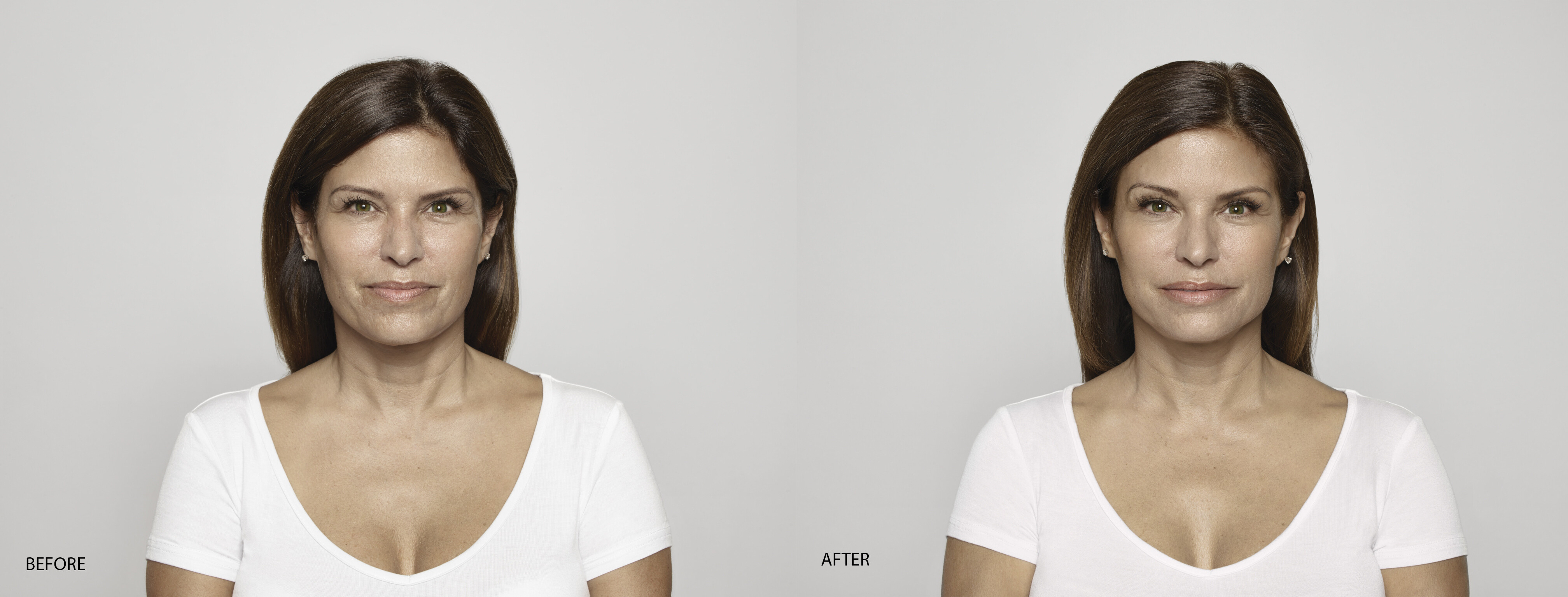 Dr. Terese Taylor M.D. - Cape Coral and Fort Myers Doctor - Restylane - Before and After