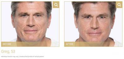 image-hiv-volumizing-filler-before-after